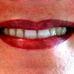 Nach der zweiten Behandlung perfekt. Die Lippen werden in den nächsten 2 Wochen heller