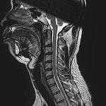 通常は、カーブしているはずの頸椎が、まっすぐ。脳幹から伸びる脊髄が見えます。
