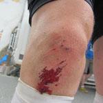das Knie nach dem Sturz