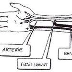 Bild 3. Shuntanlage mit Verbindung des Arterien-/ und Venenverlaufes.