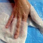 Versorgung von Verbrennungen und Verbrühungen der Hand