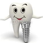 Hier erfahren Sie etwas über Vor- und Nachteile von Implantaten. Klicken Sie bitte auf das Bild!