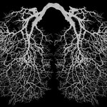 Gorgonia plexaurida pulmonis (Korallenfächerlunge)