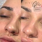 Behandlung von unreiner Haut