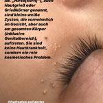 Behandlung von Lilien (Gerstenkorn, Grieskorn)