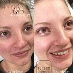 Behandlung von junger Haut, für mehr frische im Gesicht