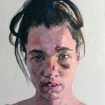 Accident, 120 x 100 cm, acrylic on canvas