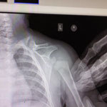 male 9 months old left clavicle