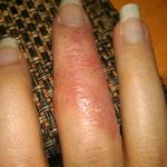 Pilzausbruch am Finger