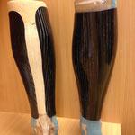 Carbon-Schienbeindruckschutz nach Wadenbeinfraktur