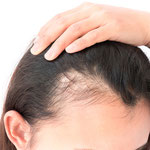 Hair loss - Thinning