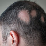 Hair loss - Patches