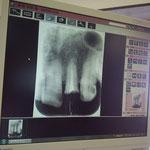 前歯がおれて歯医者に行きました。