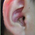 右耳の入り口に皮疹ができています