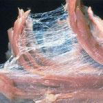 筋の束の間の筋膜(コラーゲン繊維)