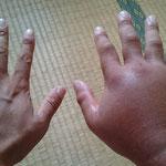 蜂刺傷で腫れた右手