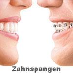 Zahnspangen