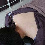 肩こり 鍼