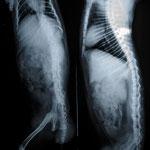 Röntgenbild von Dr. Schlemmer