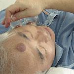 Les ventouses, utilisées de diverses manières,  permettent de soulager ou de prévenir de nombreux maux.