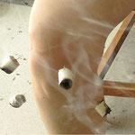 Acupuncture associée à la moxibustion. Les gestes cliniques sont moins invasifs que dans la médecine occidentale.
