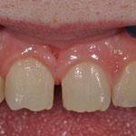 ausgangssituation zahn 11 21 patient wollte kein diasthema