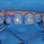 anätzen der präparierten zahnflächen