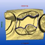 Conception du modèle 3D