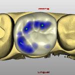 Conception numérique de la future prothèse, avec ses points de contact avec les dents antagonistes