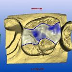 Conception numérique de la prothèse