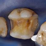 Dent préparée pour recevoir un Onlay
