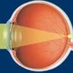Occhio normale