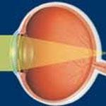 Occhio ipermetrope