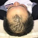 育毛・増毛 鍼灸治療1日目