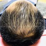 育毛・増毛 鍼灸治療21日目(3週目)