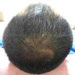 育毛・増毛 鍼灸治療169日目(24週目)