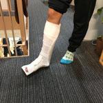 骨折 捻挫 打撲 肉離れ スポーツ障害 画像