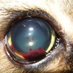 Blut in der vorderen Augenkammer (Hyphema)