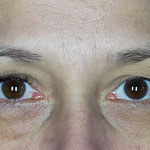 rechtes Auge fertig, links - vorher