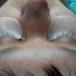 beide Augen von den Extensions befreit