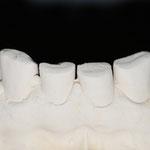 Den Patienten störten die abgeknirschten unteren Schneidezähne...