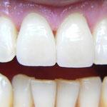 Welche Zähne wurden mit Veneers behandelt?