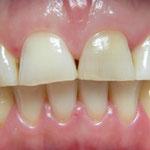 Durch Knirschen verkürzte Zähne
