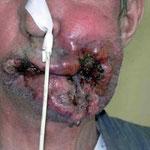Le cancer de la lèvre : un des cancers du fumeur