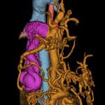 肝動静脈瘻