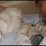 脳脊髄液採取(大槽穿刺)