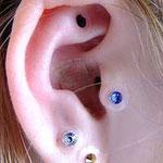 耳の中に肌色シールが貼ってあります