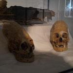 Kopfdeformierungen, die es unter der Elite Weltweit gegeben hat (auch in Deutschland oder Ägypten)
