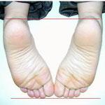 骨盤調整後、左右の足が揃っています 腰痛改善