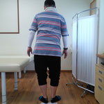 ぎっくり腰、上半身が右に傾き前かがみになっています、施術前。